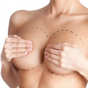 REVISION BREAST IMPLANTS